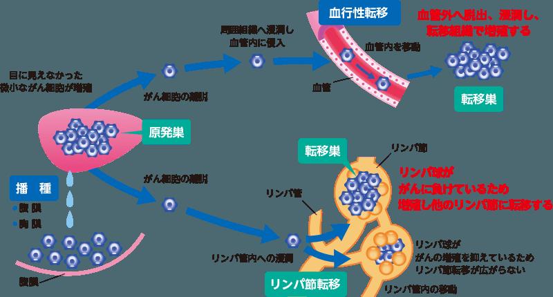 がんの基礎知識:がんの転移について