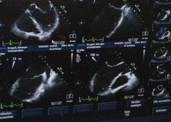 AIを用いた超音波検査における影の自動検出法を開発