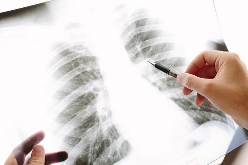小細胞肺がんについて