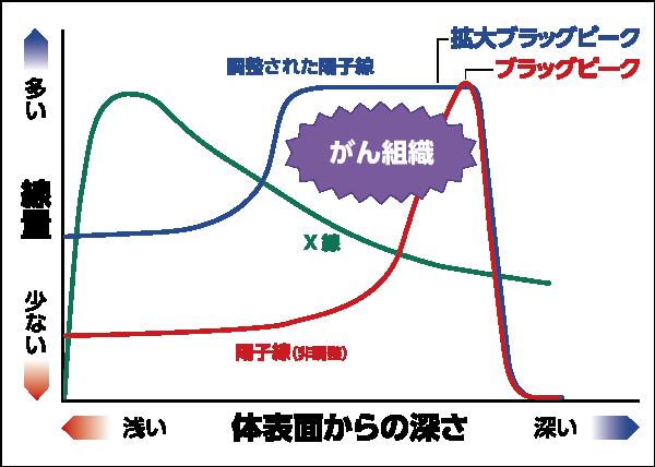 粒子線治療(陽子線、重粒子線)について