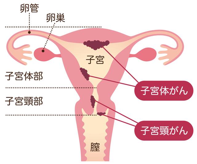 子宮頸がんについて